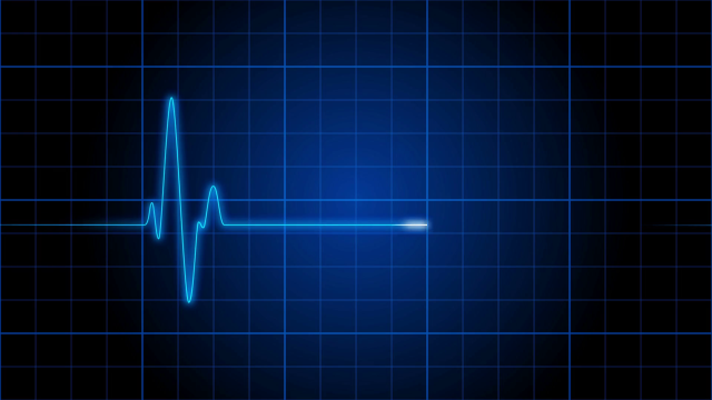 ekg-001-an-electrocardiogram-heart-monitor-pulses-on-a-blue-grid-loop_r4m_frdh_thumbnail-full01